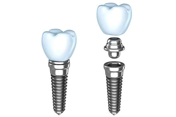Single Dental Implants in Concord