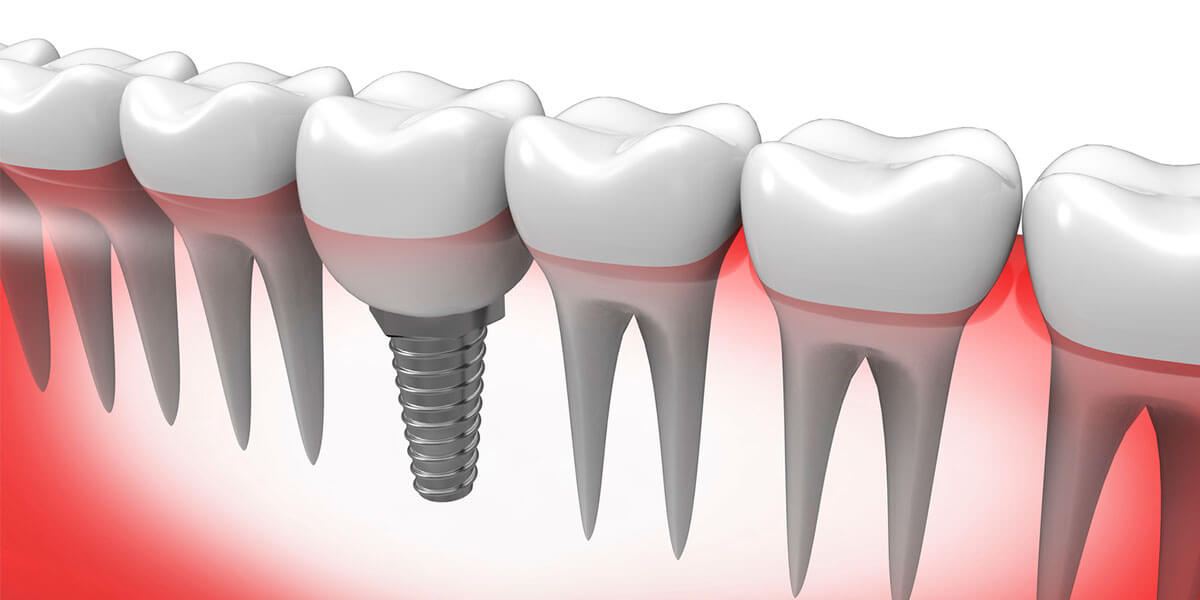 Single Tooth Dental Implants in NH